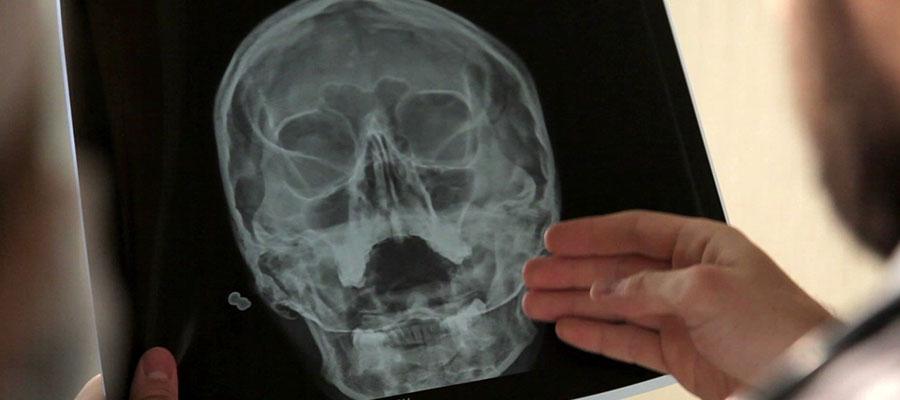 КТ и рентген гайморовых пазух